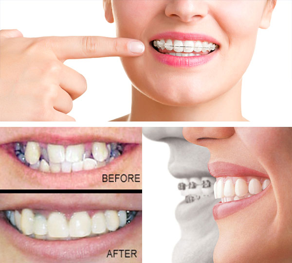 Orthodontic Treatment